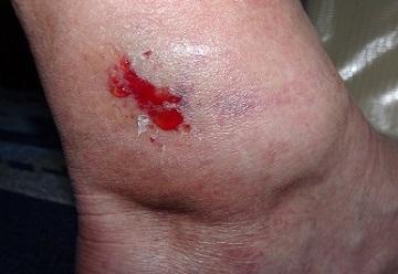 足を痛めたかな.JPG